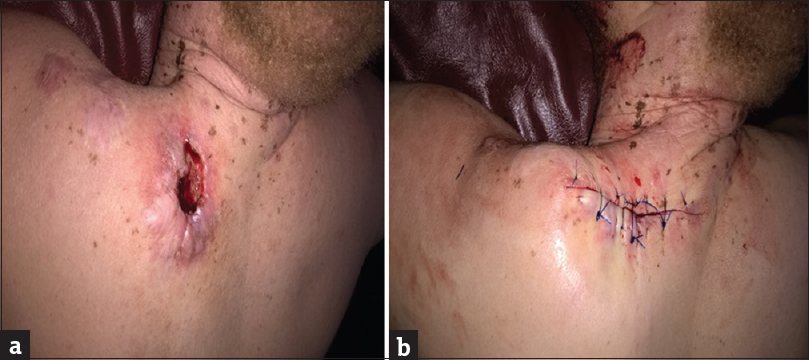 Figure 2: (a) Squamous cell carcinoma on the upper back (b) after excision and closure of the lesion