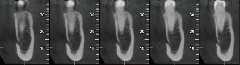 Figure 2: Coronal sections showing Type I pattern
